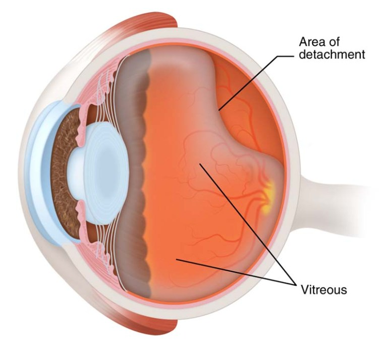 posterior-vitreous-detachment