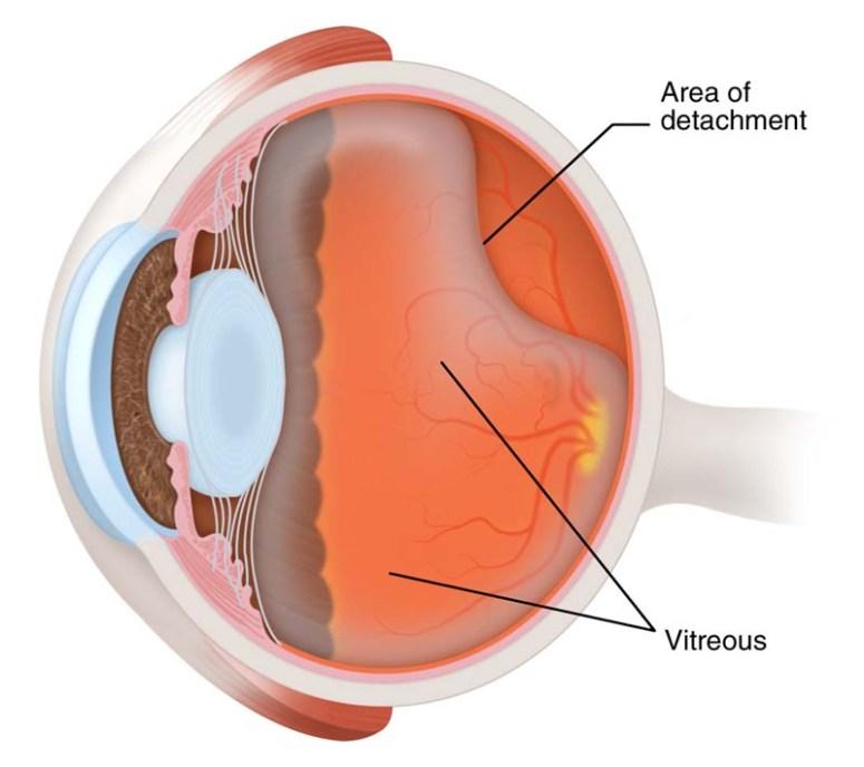 posterior-vitreous-detachment